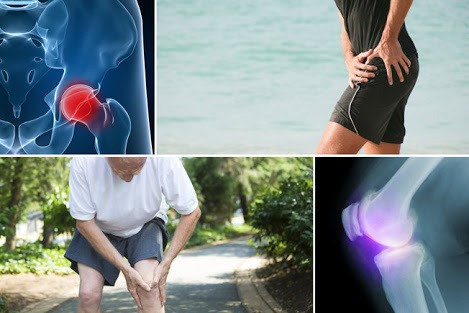Alarming Sign and Symptoms of Osteoarthritis