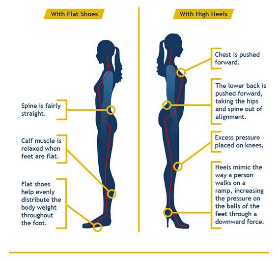 Harmful Effects Of High Heels