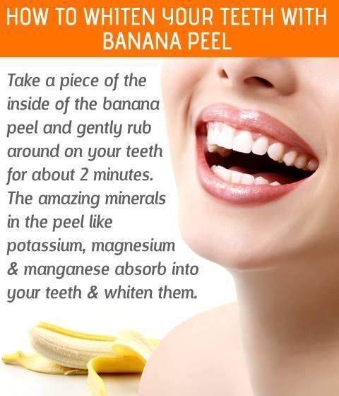 diy teeth whitening hacks