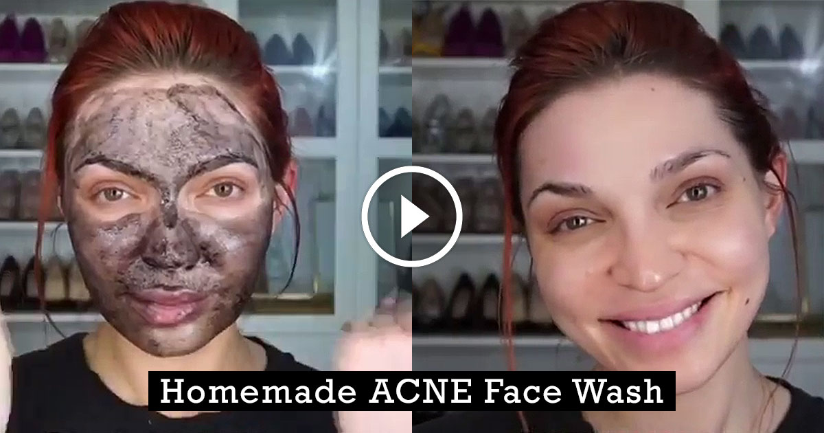 Natural Homemade Face Wash For Acne